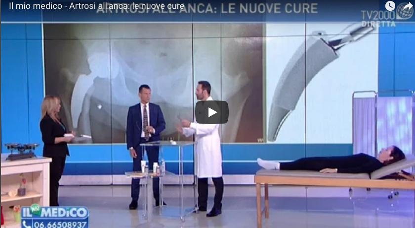 Artrosi all'anca, le nuove cure chirurgiche