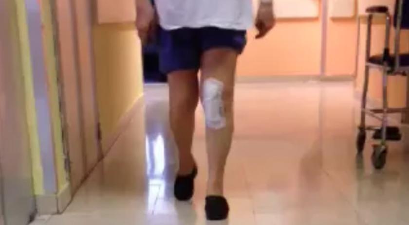 Intervento di protesi di ginocchio a 5 giorni dall'intervento