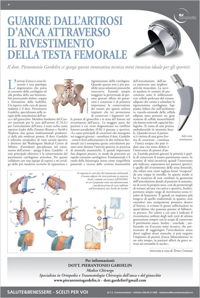 Guarire dall'artrosi d'anca attraverso il rivestimento della testa femorale