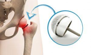 Protesi d'anca: di cosa è fatta?