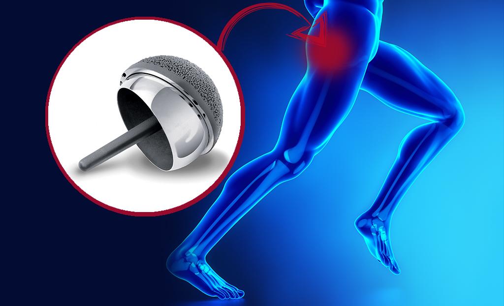 Artrosi d'anca: i vantaggi del rivestimento femorale