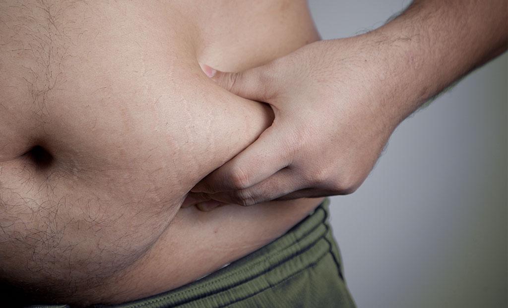 Sovrappeso e obesità: serve perdere peso prima dell'intervento di protesi d'anca o ginocchio?