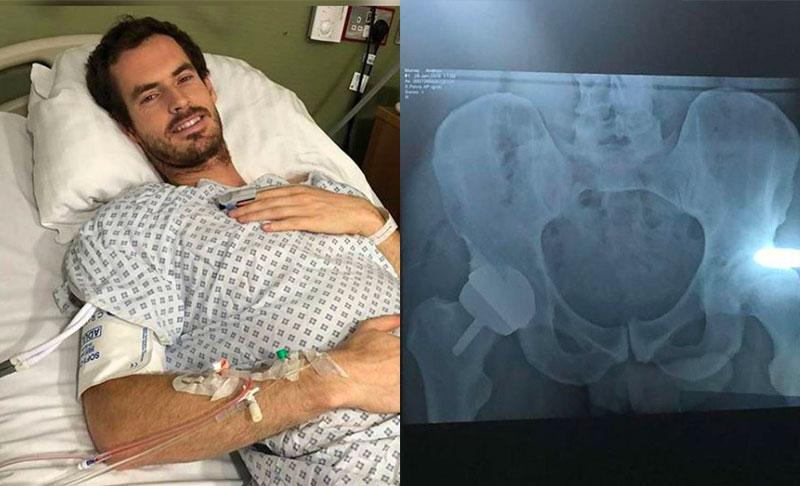 Anca, protesi di rivestimento per non abbandonare la carriera sportiva. Il caso del tennista Andy Murray