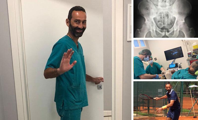 Diario di un intervento: continua la storia del dottor Pierantonio Gardelin e della sua artrosi alle anche
